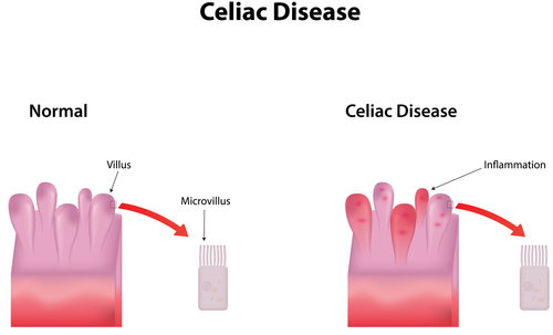New Celiac Disease Panel Offers Promising, New Diagnostic Tools To Aid Doctors, Patients