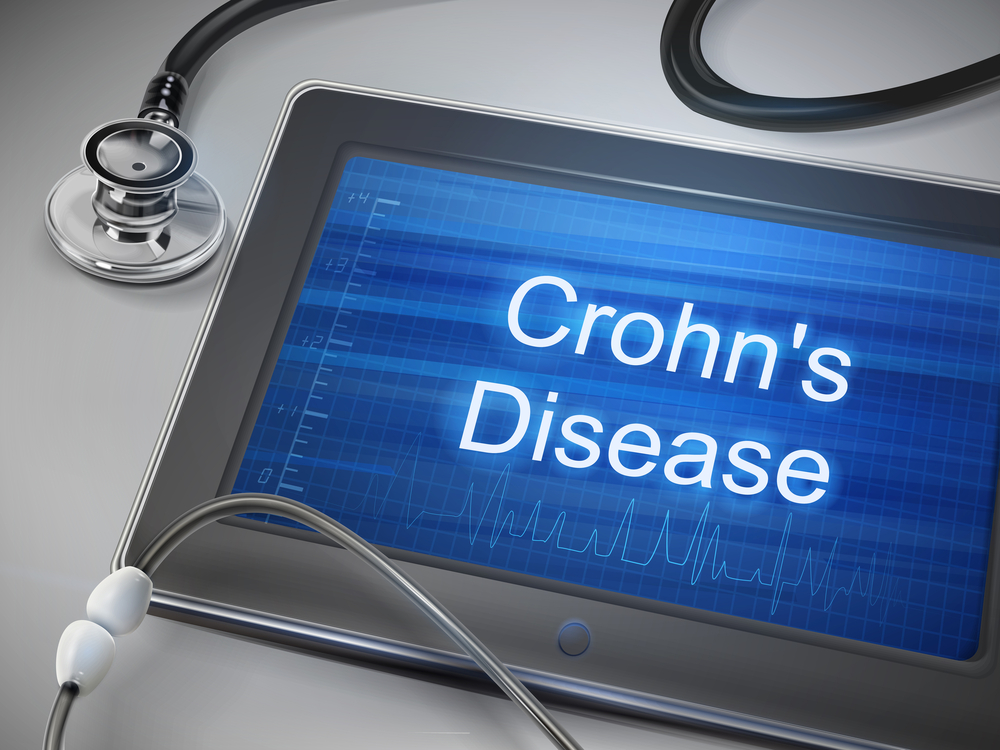 Study Finds Link Between Inflammatory Bowel Disease, Neoplastic Lesions of the Uterine Cervix