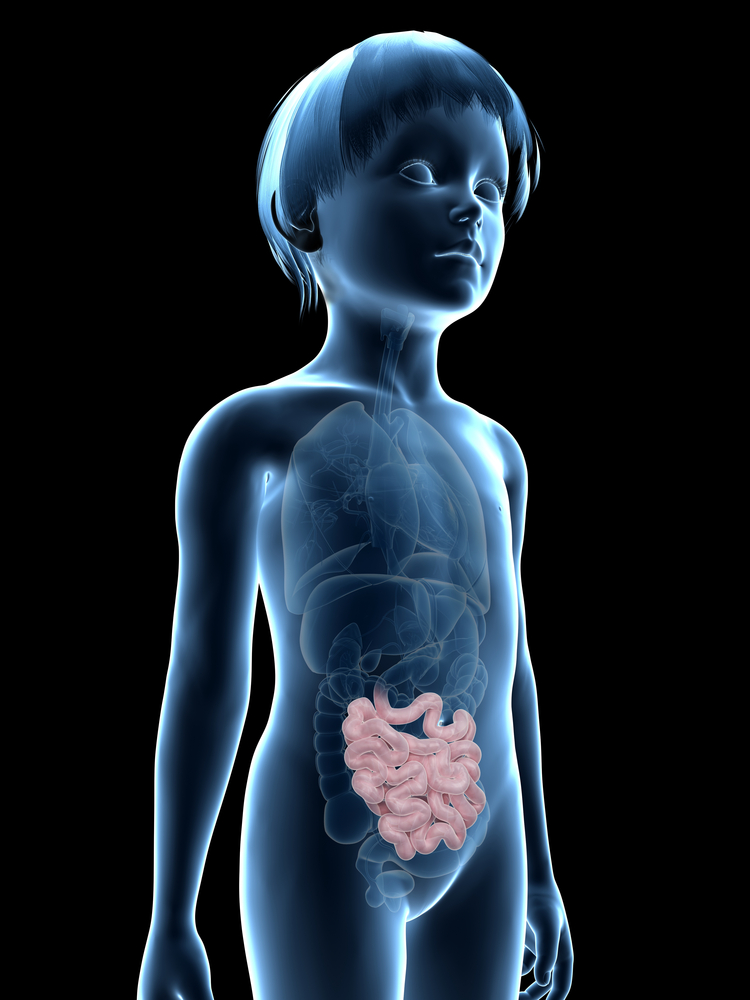 Chronic Inflammation and Immunosuppressive Therapy Increases IBD-associated Colorectal Cancer Risk