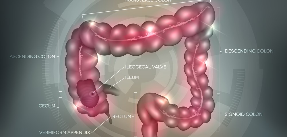Successful Remission in Ulcerative Colitis Patients Achieved Using Combination Therapy