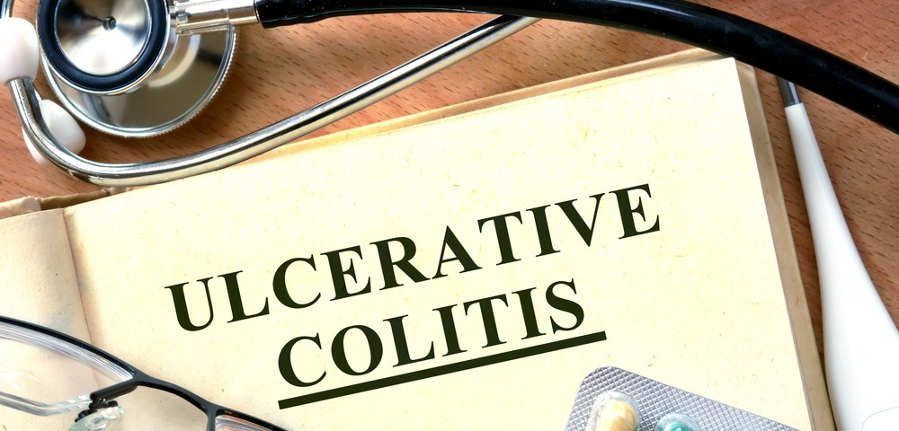 Ulcerative Colitis Disease Activity: Rectosigmoidoscopy Strongly Correlates With Colonoscopy Results