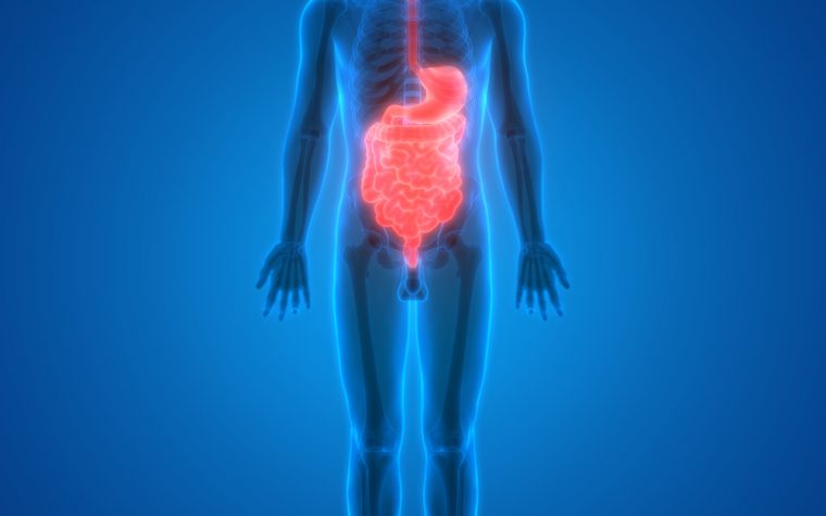 IBD-linked colon cancer