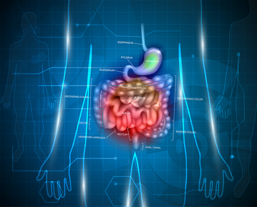 Colectomy Increases Risk of Gallstones in Patients with Ulcerative Colitis, Study Suggests